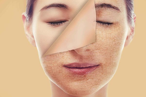خشکی پوست نشانه کم آبی بدن