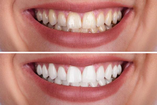 عوارض مصرف کلر بر دندان